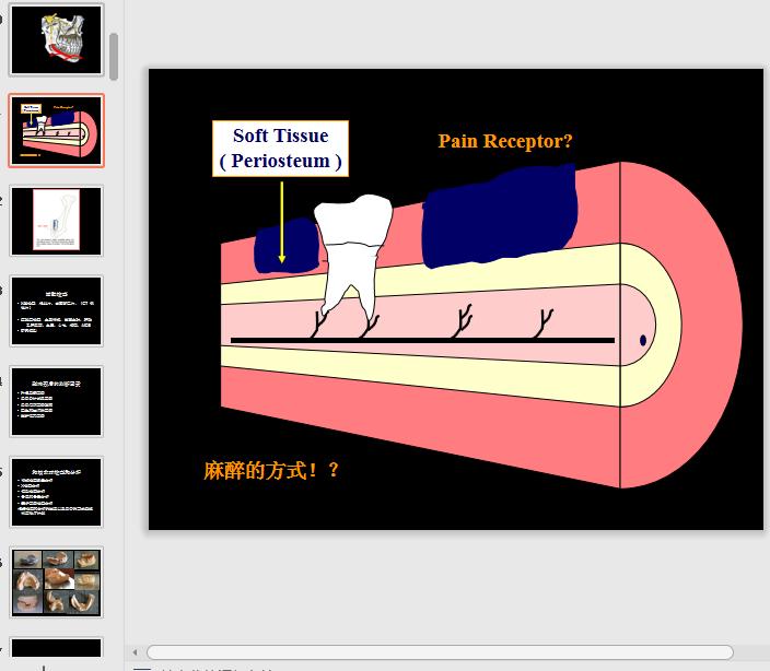 种植牙的流程和注意事项PPT学习课件免费版截图2